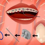 What you should know about teeth braces?