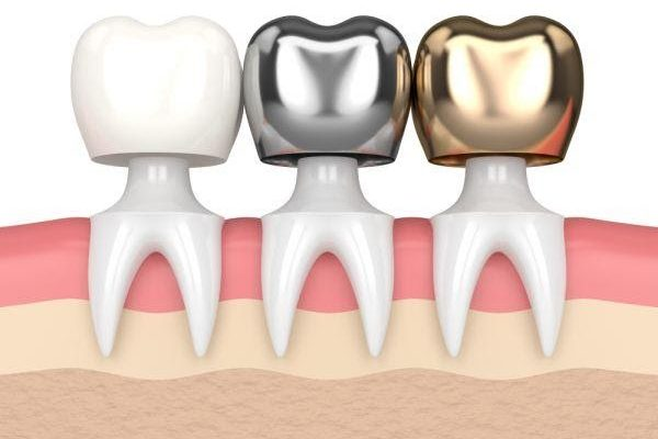 Jacksonville Dental Crowns