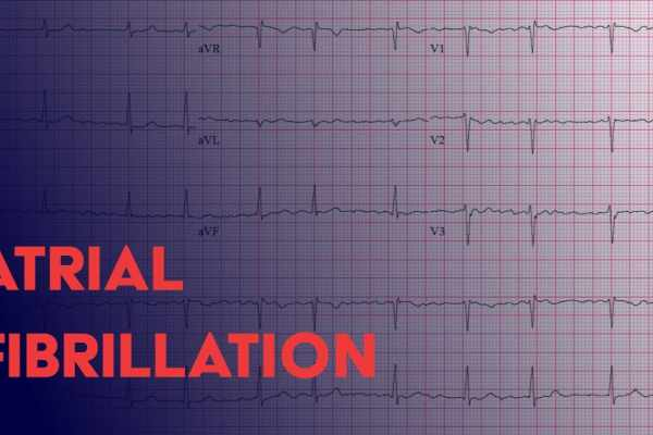Natural Treatment atrial fibrillation