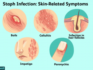 staph infection on skin