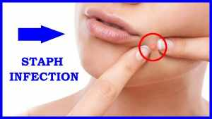 staph infections on skin