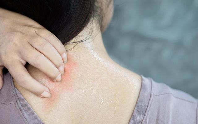 red spots on skin