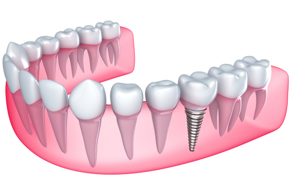 What Implant Retained Dentures