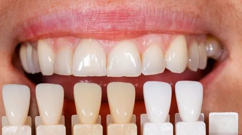 Veneers Could Be a Really Smart Idea